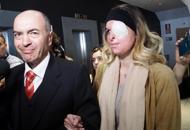 Il ministro incontra Gessica,la ragazza sfregiata dall'ex